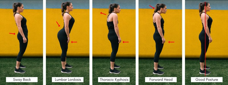 types of Bad Posture and what good posture looks like