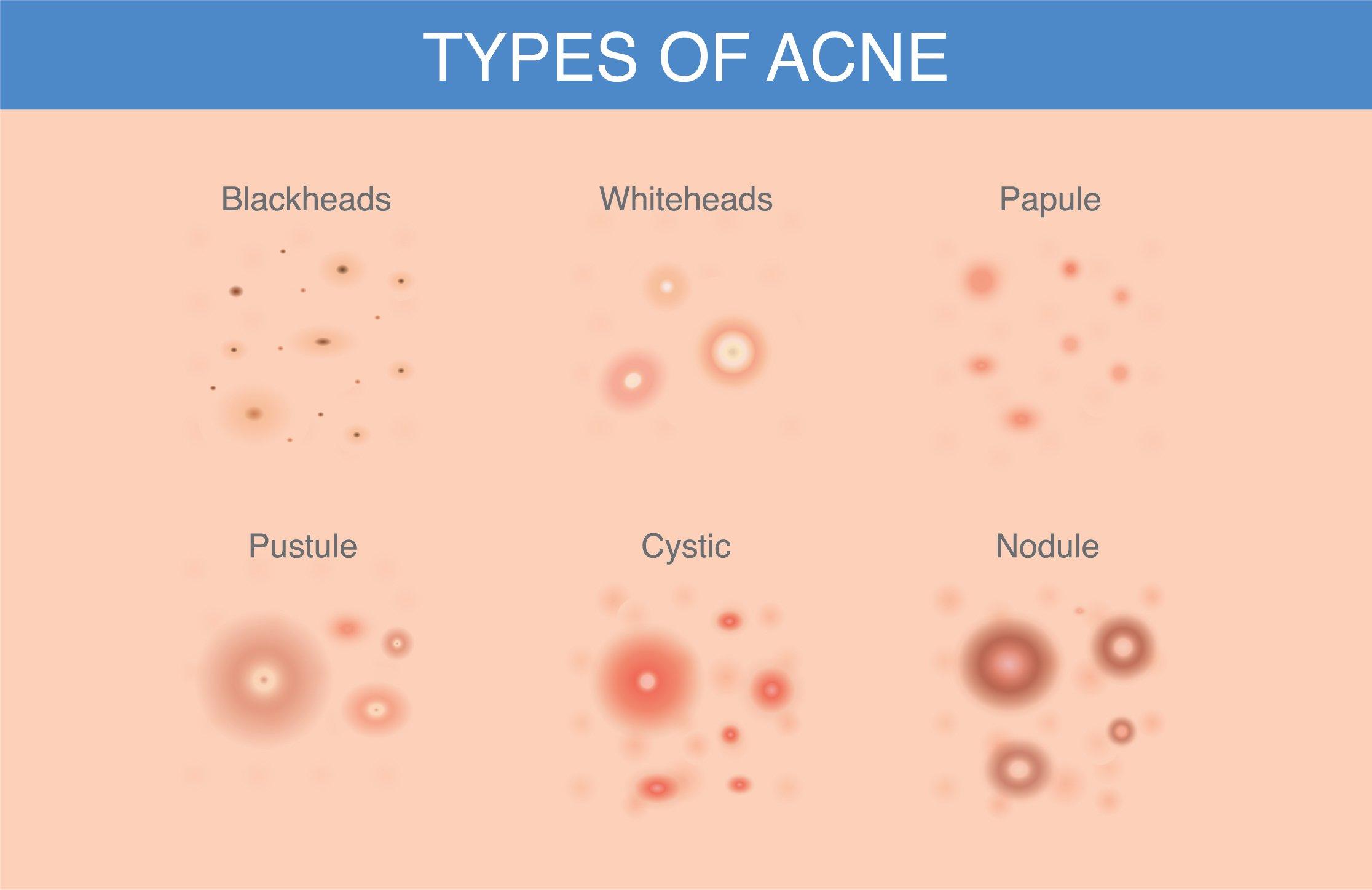 body acne